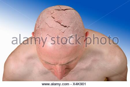 Person with cracked head, illustration Stock Photo